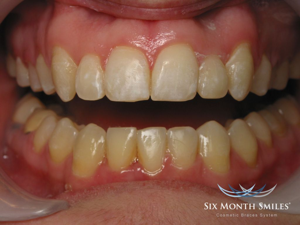 6 20month 20smiles 20after